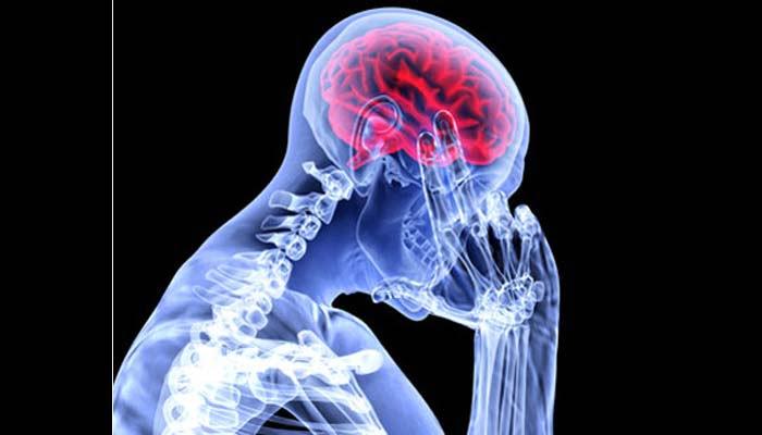 Emicrania: Efficace E Sicura La Stimolazione Del Nervo Vago
