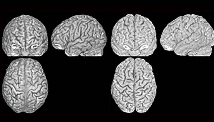 Obesità E Volume Cerebrale: Stabilita Una Correlazione