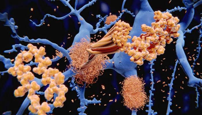 Le Variazioni Longitudinali Dei Biomarcatori Della Malattia Di Alzheimer