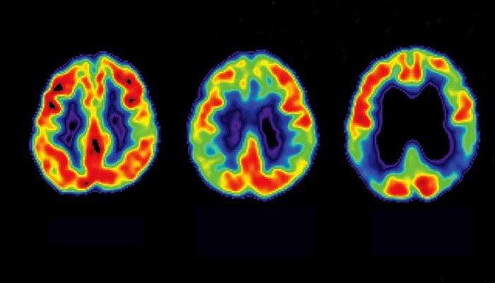 Una Stadiazione Della Beta-amiloide Per L'Alzheimer