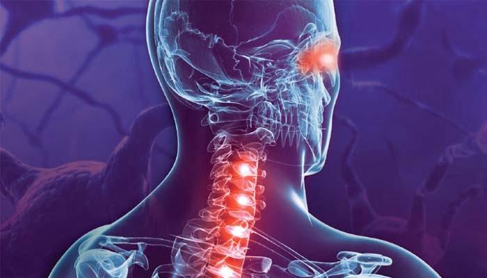 Inebilizumab Efficace Nella Neuromielite Ottica