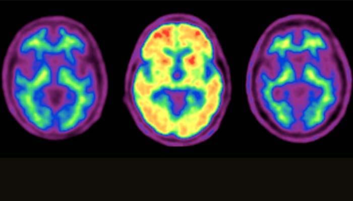 Beta-amiloide E Aterosclerosi Intracranica: Nessuna Correlazione
