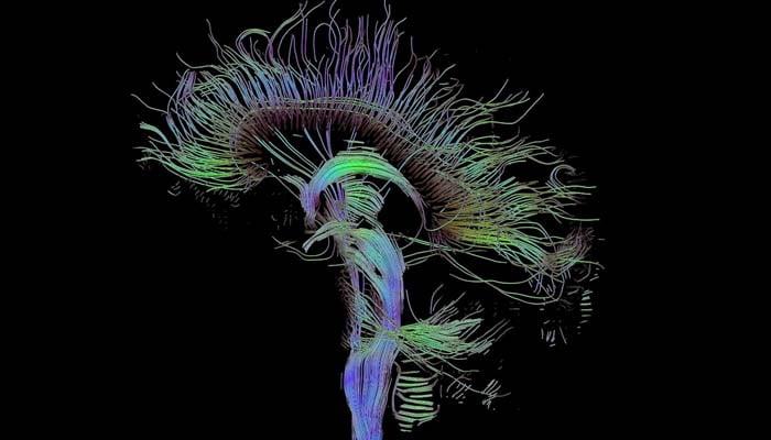 Settimana Mondiale Del Cervello. Focus Sui Sistemi Neurofisiologici Dell'attenzione
