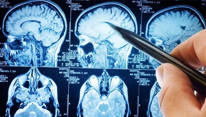 Anomalie Microstrutturali Cerebrali Nei Bambini Con PANS
