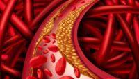 Colesterolo Arterie